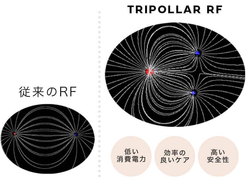 RFの効果